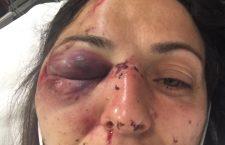 18/04 – conferenza stampa: lacrimogeni ad altezza uomo, ferita grave un'attivista No Tav