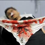 NO TAV 24 luglio, hanno di nuovo sparato per uccidere!_1311597812356